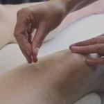 Acupunctuurnaald wordt gezet op het bovenbeen van een man bij Acupunctuur Dijkstra in Alkmaar.