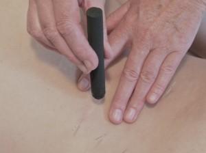 Acupunctuur Alkmaar moxa therapie