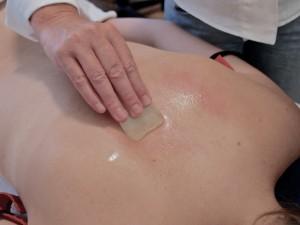 Guasha behandeling bij Acupunctuur Dijkstra in Alkmaar.
